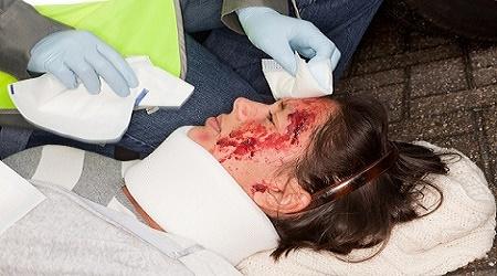 אישה שוכבת על כביש,מדממת מהפנים ומטופלת על ידי פרמדיק